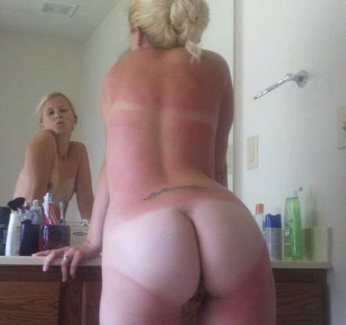 burn asses girls sun Naked with