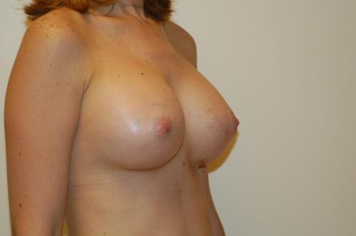 new Female breast york surgery