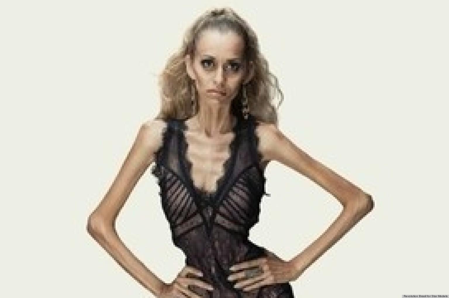 anorexic Skinny model