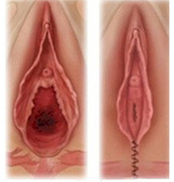 diagram Vagina piercings
