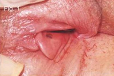 on Black vulva pump